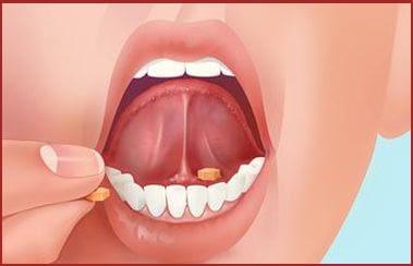 Jual Obat Herbal Jantung Koroner Surabaya Cara Minum ICP Capsule sublingual bawah lidah