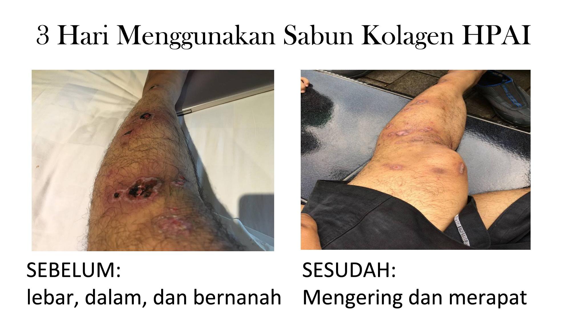 Testimoni sabun kolagen hpai Murah Surabaya