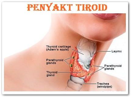 Jual Obat Herbal Tiroid Surabaya
