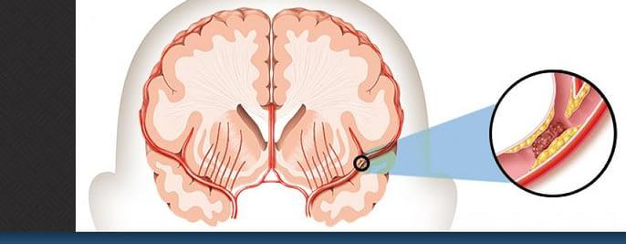 Agen Jual Obat Stroke Surabaya Sidoarjo stroke center stroke horiz