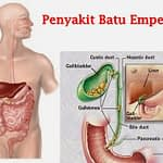 Jual Obat Batu Empedu Surabaya