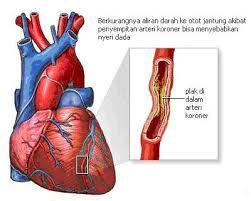 jantung-koroner