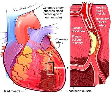Distributor Obat Herbal Jantung Koroner plak